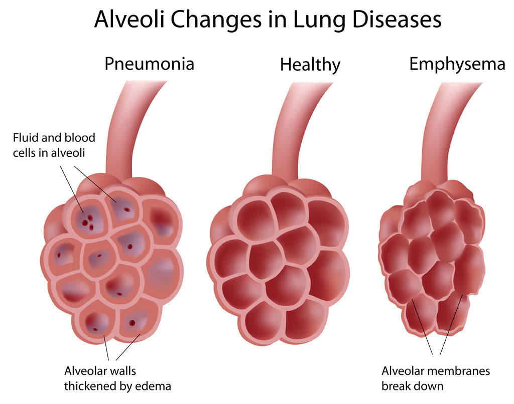Alveoli In Lung Diseases Pediatric Pulmonologists