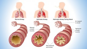 Pediatric Lung Diseases Disorders
