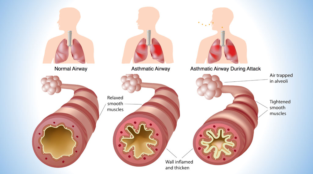 Asthma-airways-blue - Pediatric Pulmonologists