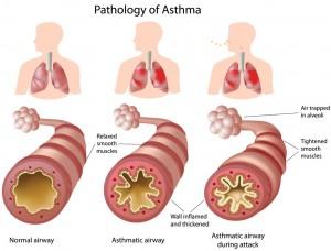 Childhood Asthma (Pediatric Asthma)