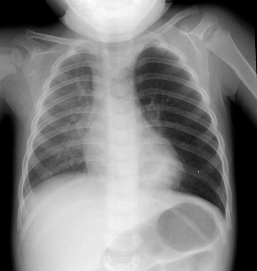 chest x-ray child - Pediatric Pulmonologists