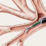 transbronchial biopsy
