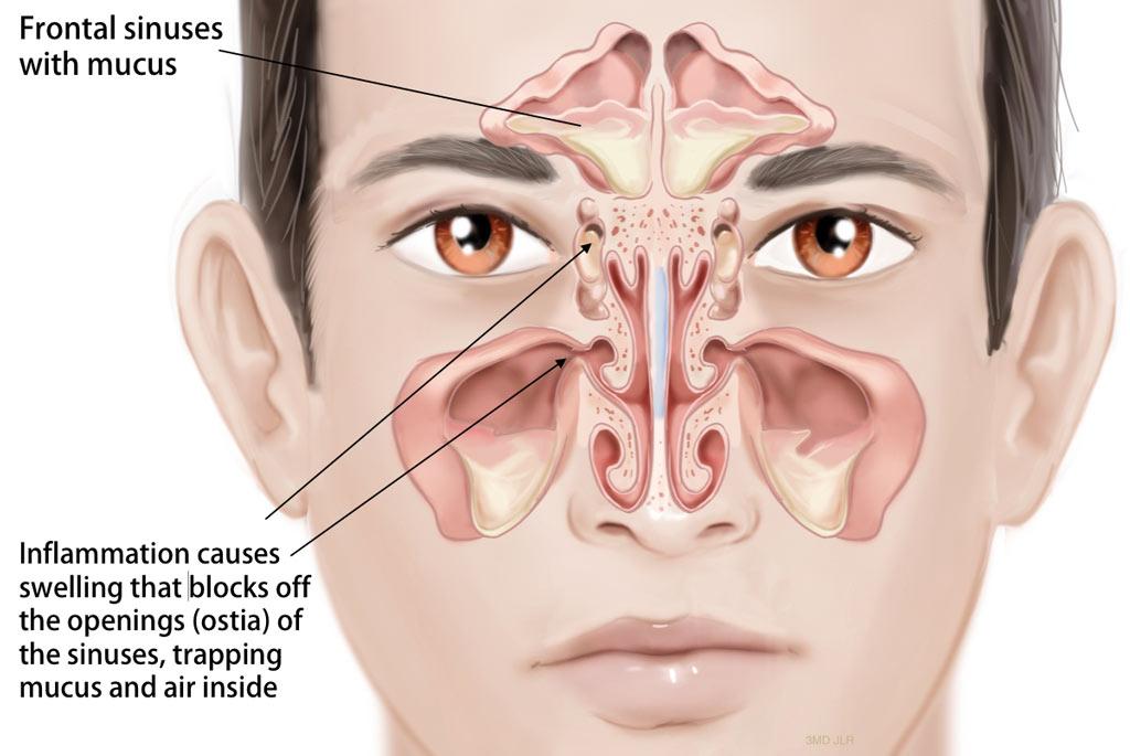 sinus-infection- Pediatric Pulmonologists