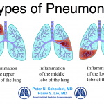 Types of Recurrent Pneumonia Children