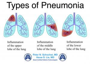 Types of Recurrent Pneumonia Children