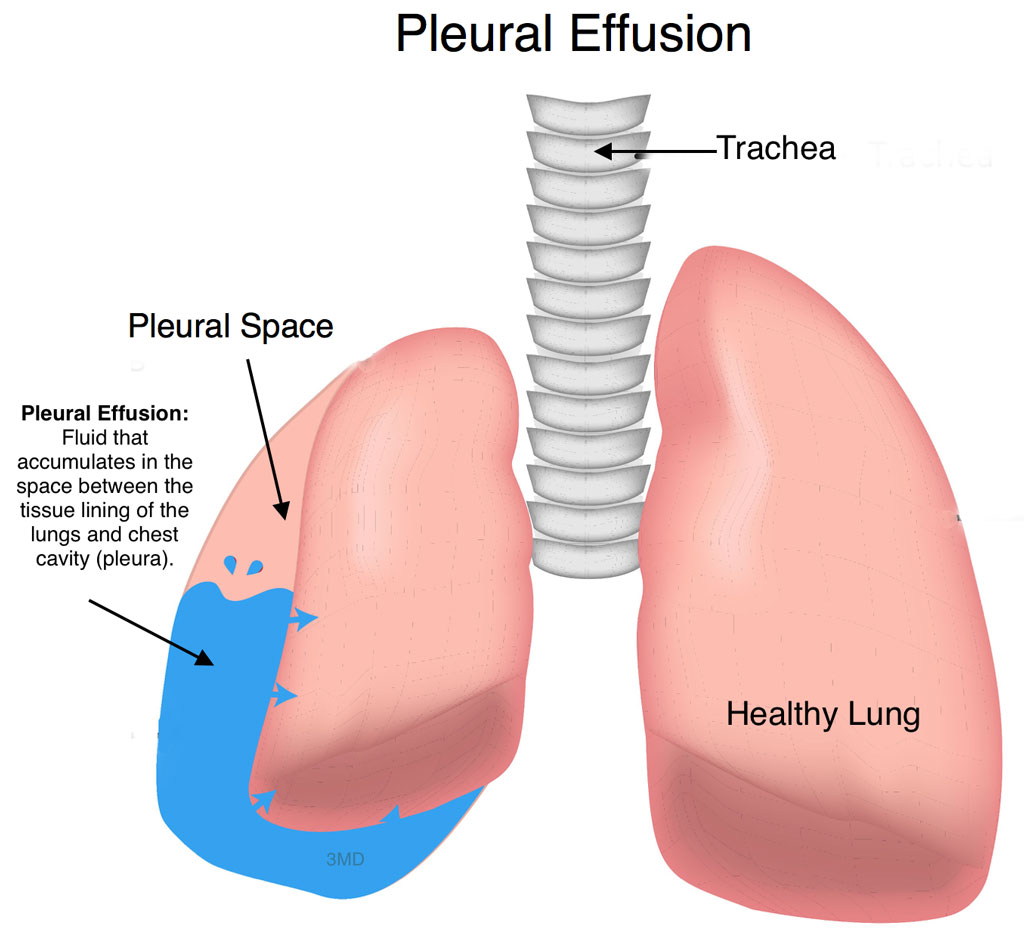 pleural-effusion - Pediatric Pulmonologists