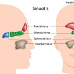 sinusitis causes asthma
