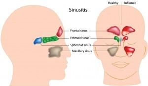 sinusitis causes asthma