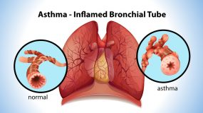 Severe asthma in children (difficult-to-treat and treatment-resistant asthma) is treated by our pediatric pulmonologists